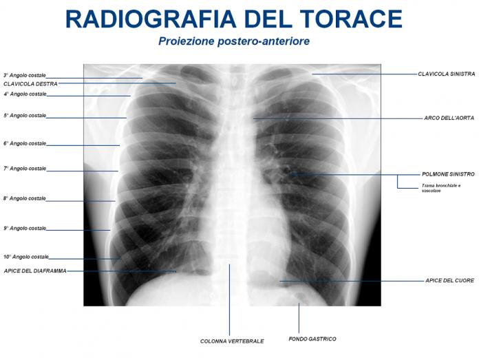 """Taranto. Convegno dedicato alle """"Patologie polmonari. Dalla Diagnosi alla terapia"""""""