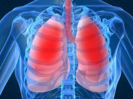 Nuovo farmaco contro il tumore al polmone. Si chiama Durvalumab