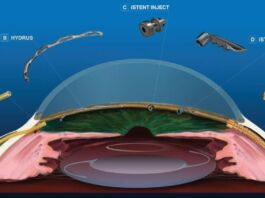 minimally invasive glaucoma surgery